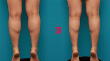 する 筋肉質 を 方法 の 足 細く