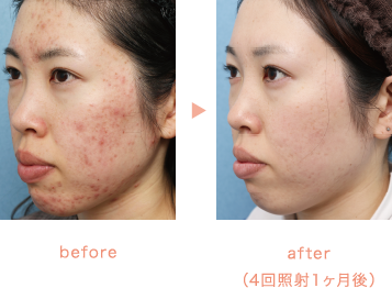 before/after(4回照射1ヶ月後)