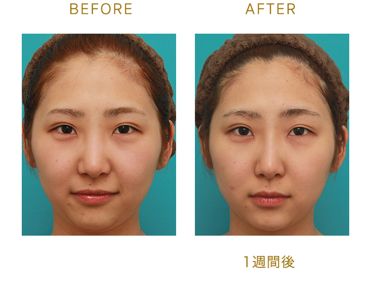 BEFORE/AFTER(1週間後)