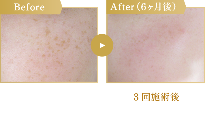 Before/After(6ヶ月後)3回施術後