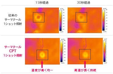 モデルの腹部に照射後、皮膚表面温度を赤外線カメラで撮影