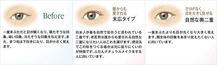 Before:一重まぶただと目が細くなり、眠たそうな印象、暗い印象、冷たそうな印象を与えます。また、まつ毛は下向きになり、目が小さく見えます。/末広タイプ:日本人が最も自然で似合うと言われている二重です。老若男女誰からも愛される自然な二重になりたい人はこれを選びます。埋没法でこの形をつくる場合は元に戻りにくいのが特徴です。ふだんナチュラルメイクをする人に向いています。/自然な奥二重:一重まぶたよりも目が丸くなり大きく見えます。顔全体の印象をあまり変えたくない人に向いています。
