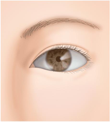 垂れ目(タレ目,パンダ目)形成(グラマラスライン/下眼瞼下制