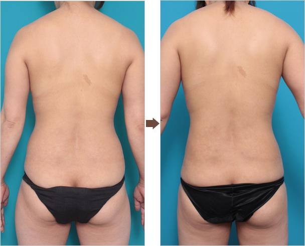 脂肪吸引の症例写真