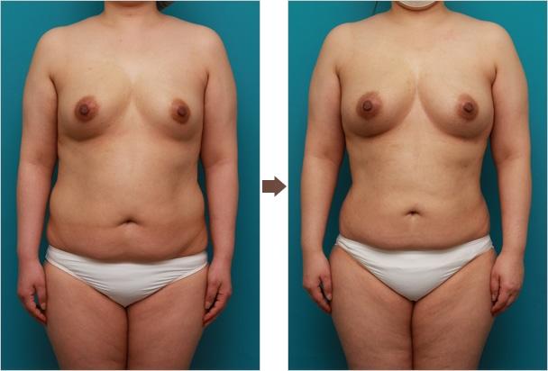側胸脂肪を取り除く運動