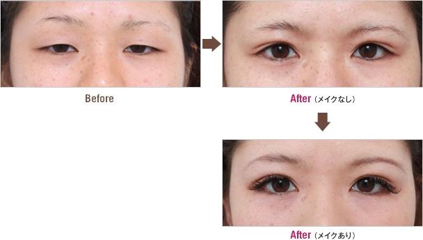 取り ない 意味 脂肪 瞼 まぶたの脂肪吸引は効果が少ない!医師が教える効果と注意点