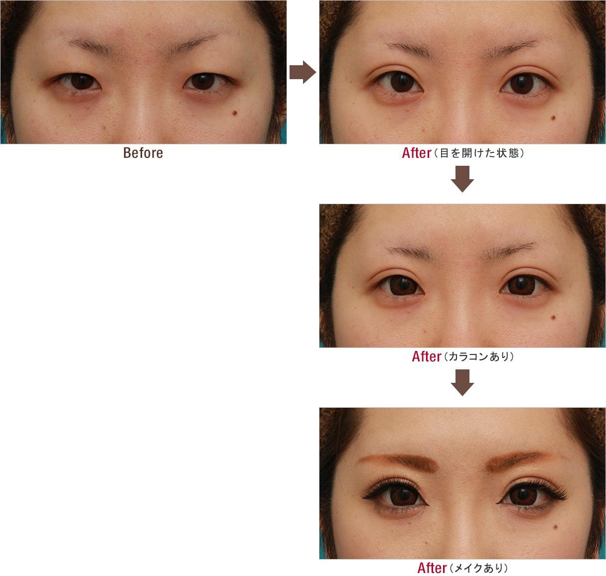 目頭切開+眼瞼下垂手術で、アイラインを引いても奥二