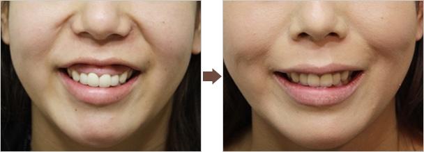 ガミースマイルの治療について : Dr.高須幹弥の美容整形講座 : 美容整形の高須クリニック