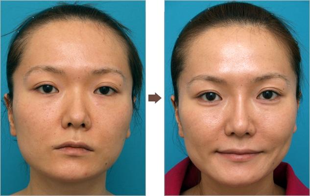 酸 鼻 ヒアルロン ヒアルロン酸でする鼻の美容整形