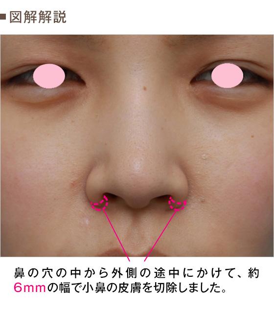 鼻 の 穴 痛い