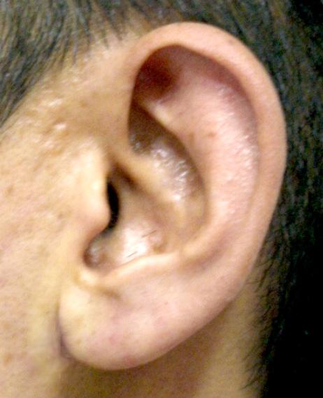 シワ 耳たぶ の