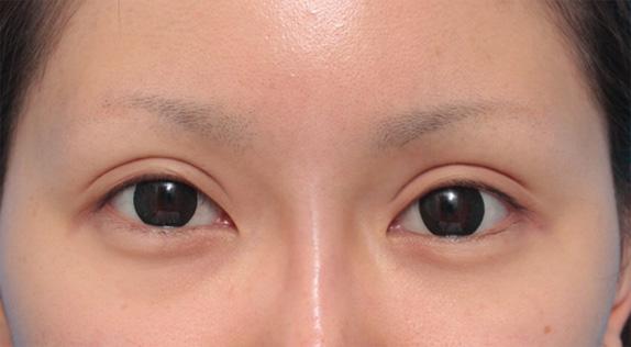 二重まぶた・全切開法-症例写真 : 二重まぶた・目もと : 美容 ...