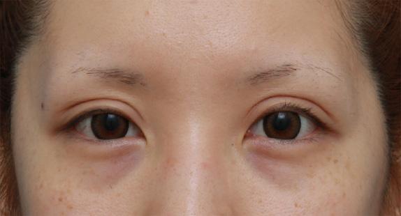 他院で切開法で非常に幅の広い二重を作り失敗し、眼瞼下垂 ...