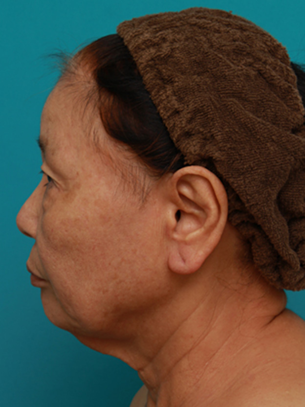 エイジングケア、しわ取りにミニフェイスリフト(頬のたるみ取り)-症例写真