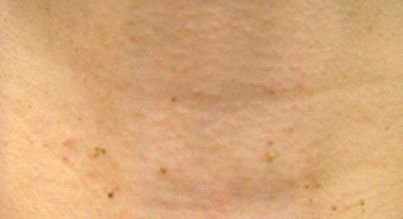 イボ 除去 首 首にできるイボの種類(老人性イボからスキンタッグ)