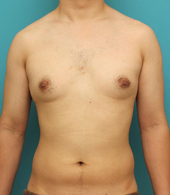 化 乳房 女性